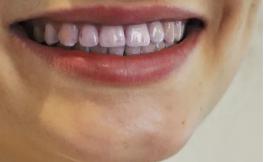 喝完酒后牙齿嘴唇都变紫,是喝到假酒了吗?